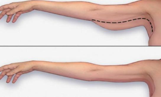 Hút mỡ bắp tay an toàn không biến chứng tại Thẩm Mỹ Viện Icon