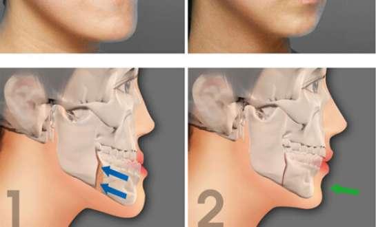 Phẫu thuật chỉnh hình cằm ngắn