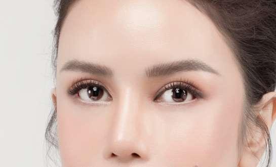 Phẫu thuật mở rộng góc mắt