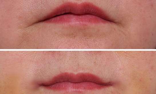 Tiêm Filler môi - Tạo đôi môi căng mọng