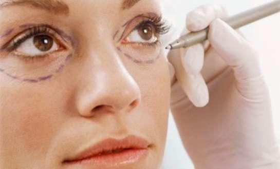 Các loại phẫu thuật thẩm mỹ mắt phổ biến tại Viện thẩm mỹ Icon